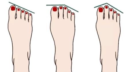 脚型也有分类?看看你是什么类型的脚
