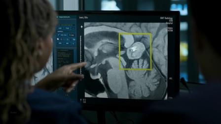 女子的大脑里竟然有一颗牙齿!医生们为她开颅后,全体看呆了