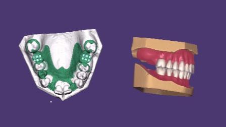 exocad 全口义齿模块&活动支架模块