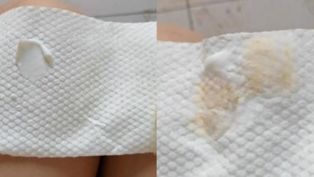 洗完脸后女子突发奇想,将柠檬膏放进洗脸巾,结果亮了!