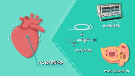 射频消融?杂交手术?外科迷宫手术?谁才能安全有效根治房颤?
