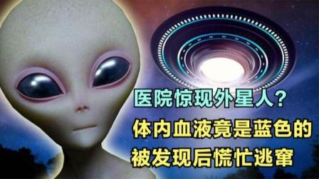 """湖南惊现""""外星人""""体内血液竟是蓝色的,被发现后慌忙逃窜?"""