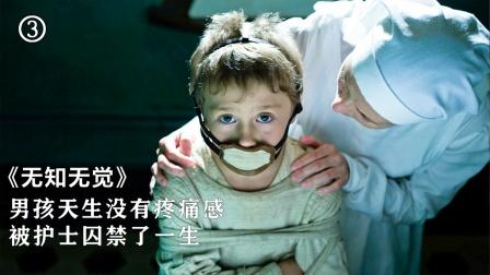 男孩得了无痛症,用火烧都没有感觉(三)