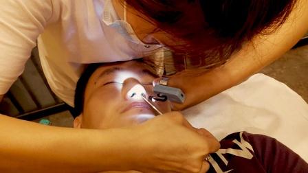 在天津体验洗鼻,打喷嚏流眼泪,助眠解压