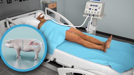 猪肾移植人体手术成功,未发生排异,以后可以拿猪肾换iphone了