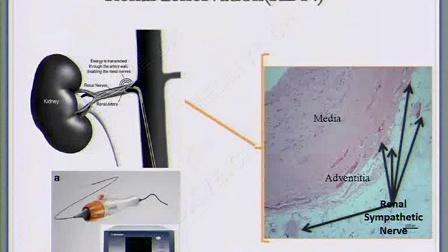 马为:肾动脉交感神经消融术的适应证