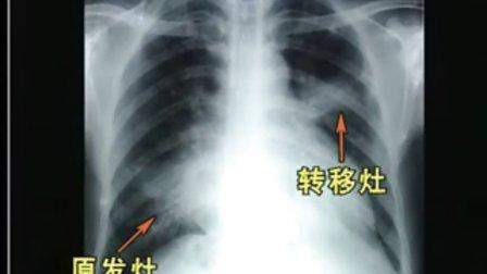 医学影集诊断学、内科学-呼吸系统疾病的X线诊断(2)