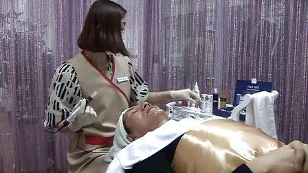 Ronas干细胞微针美雕-微整形-韩国原装进口正品