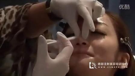德丽方跃明注射美容培训之肉毒杆菌注射隆鼻