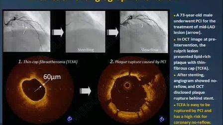 刘健:光学相干断层显像技术评价动脉斑块的研究进展