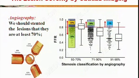 郭丽君:冠脉病变功能学评价和临床应用