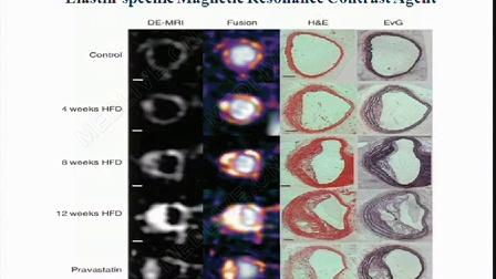 曹丰:纳米技术在动脉粥样硬化中的诊治新进展