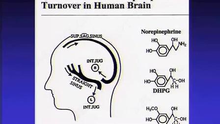 Murray Esler:经导管肾脏神经治疗的原理及发展史