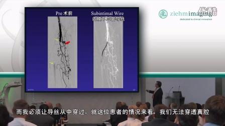 内膜下再通术及足部穿刺技术