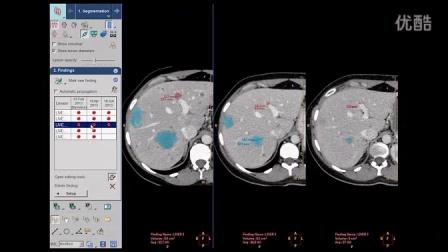 ICAP Portal 6 oncology MMTT testimonial Dr Raskin 1