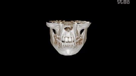 切除突出的下颌角和较为发达的下颌骨,塑造V型脸。