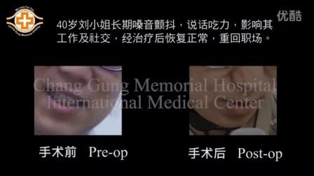 台湾林口长庚医院 - 声带治疗 痉挛性发声异常