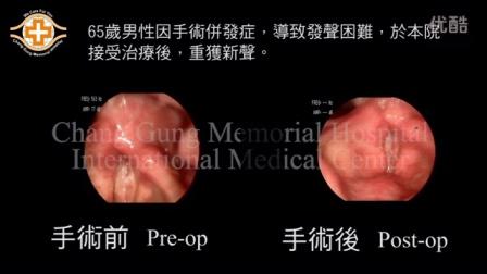 台湾林口长庚医院 - 声带治疗 声带蹼