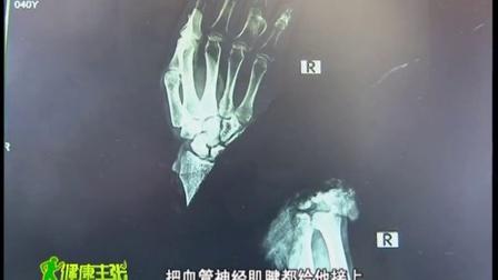 香山医院右腕再植李根科(2015年回访)