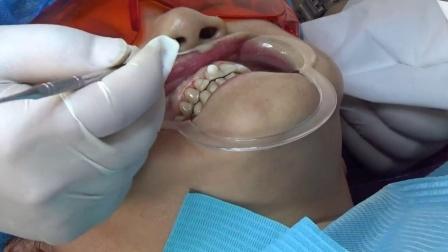 爱剪辑-我的牙齿视频