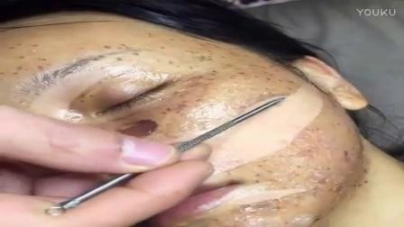 微肤康中药祛斑皮膜培植技术培训