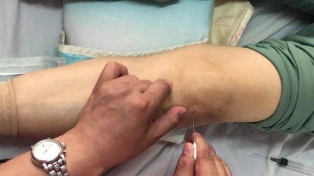 關節炎針刀治療中