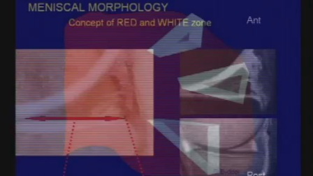 12 1 Advanced Imaging of the Knee  Meniscal Abnormalities and Pathology
