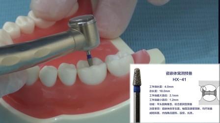 海象瓷嵌体牙体预备