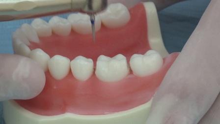 海象后牙快速牙体预备