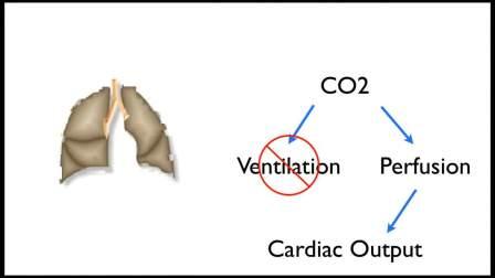 心跳骤停急救中的呼吸末CO2监测