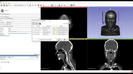 Creating 3D Printable Medical Models for Free 3D Slicer and Meshmixer