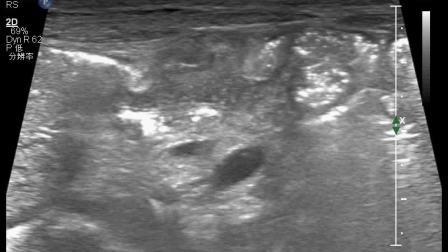 新生儿梅毒腹部包块视频