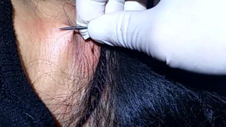 针挑颈椎,挑背疗法