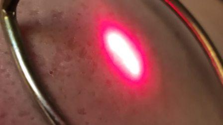 JMDILAN中胚疗法修复㾀痘坑