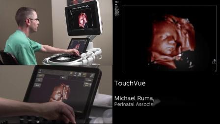 Philips TrueVue, TouchVue, MPR Touch
