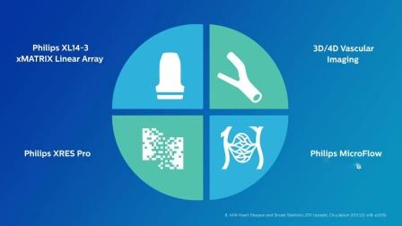 Philips vascular assessment