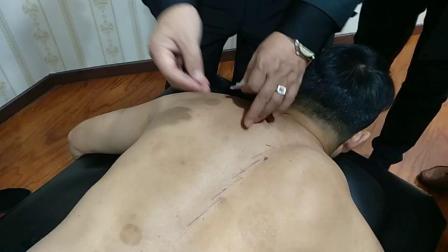 中医针灸推拿疗法视频-张军针灸治疗强直性脊柱炎