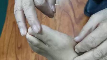 中医针灸针法教学视频-李茂发达摩幸福三针