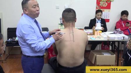 王军旗:图示讲解背部治疗点——【毫刃针无痛松解术】