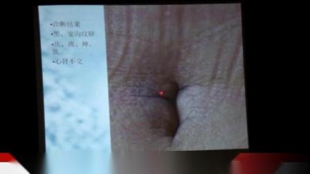 夏氏盘龙脐诊-第一集③.mp4