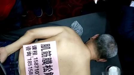 叶颖华--肌筋膜松解术 (26)