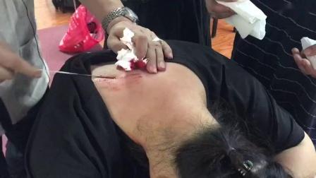 张军疑难杂症治疗富贵包颈椎病手法实操演示教学视频_高清