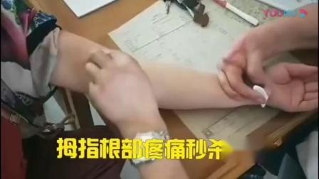 针灸松解筋膜治疗拇指根疼痛腱鞘炎疼痛手法_标清