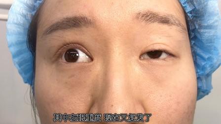 高难度眼睑下垂修复