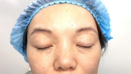 左眼义眼上睑下垂矫正术后6天