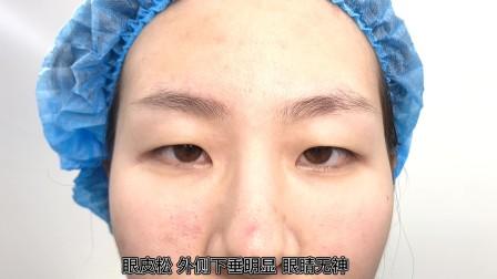 姑娘见姐姐2年前做的双眼皮比较自然 今天也来脱单了