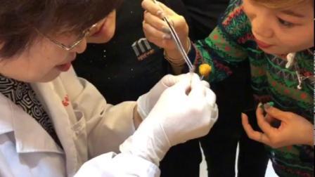 李玲老师—埋线治疗病症