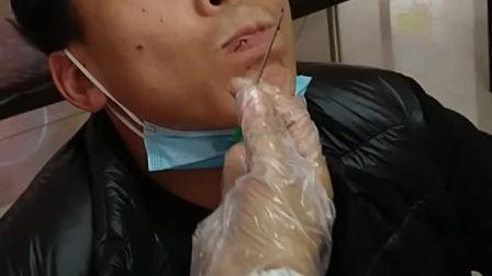 王氏无痛刺络放血排瘀疗法舌下取栓善瑞堂王琪