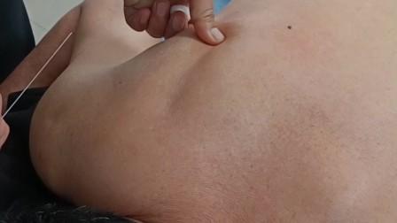 【简灵奇针】周大鹏老师治疗肩痛、手臂疼痛,当场见效!更多视频关注公中号:天下明医平台