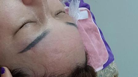 姜疗套肩接合头疗操作